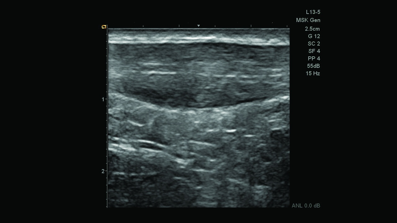 Siemens Acuson Freestyle Ultrasound Cable-free transducers improve access for difficult-to-reach anatomy, such as this thickened Achilles tendon.