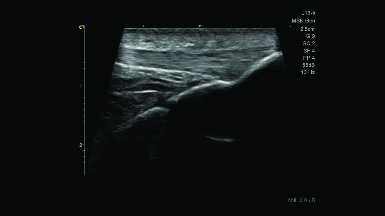 Siemens Acuson Freestyle Ultrasound Clearly visualize the patellar tendon while scanning up to 10 feet from the system using the L13-5 cable-free transducer.