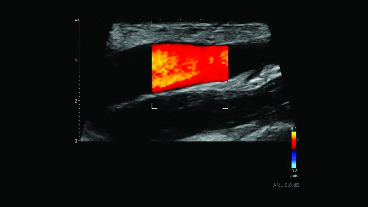 Siemens Acuson Freestyle Ultrasound Extend the field-of-view when visualizing the subclavian artery using Wide Mode imaging.