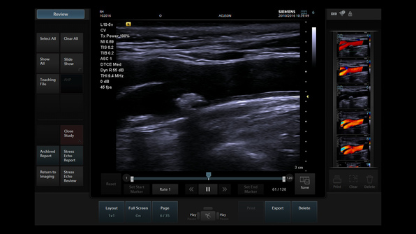 Siemens Acuson P500 Ultrasound Touch interface allows users to more easily interact with the imaging parameters on the screen for increased workflow efficiency.