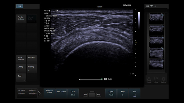 Siemens Acuson P500 Ultrasound Motion correction technology improves diagnostic confidence while performing dynamic scans of joints in motion, such as this shoulder.