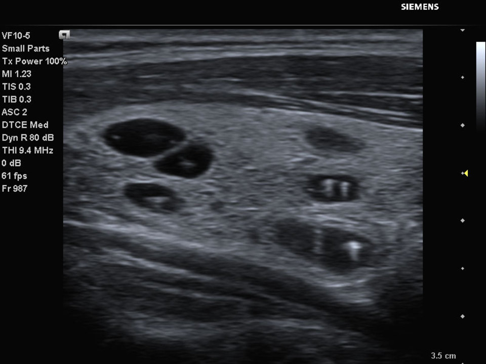 Siemens Acuson P500 Ultrasound Thyroid Cysts with Calcifications